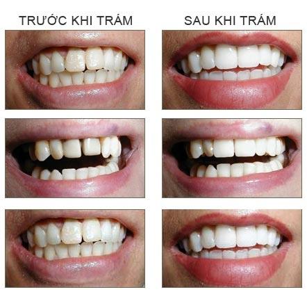 Đặt hàng Trám răng