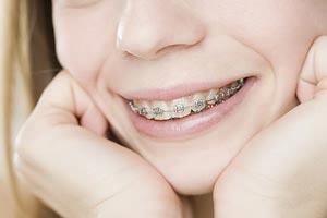 Đặt hàng Chỉnh hình răng